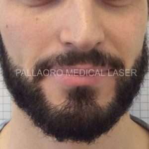 Trapianto barba: dopo
