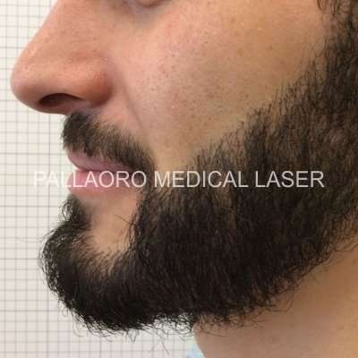 Trapianto barba dopo