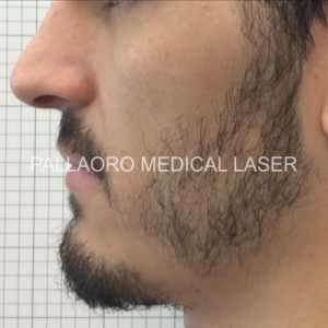 Trapianto barba: Prima