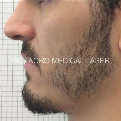 Trapianto barba prima