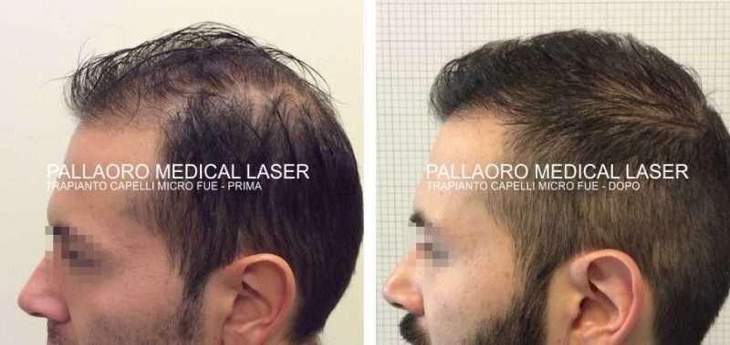 Trapianto capelli foto diradamento generalizzato