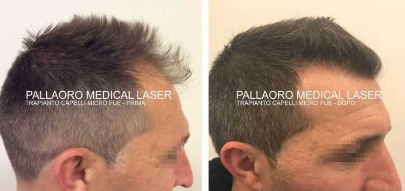 Trapianto capelli foto con tecnica d'impianto ad alta densità