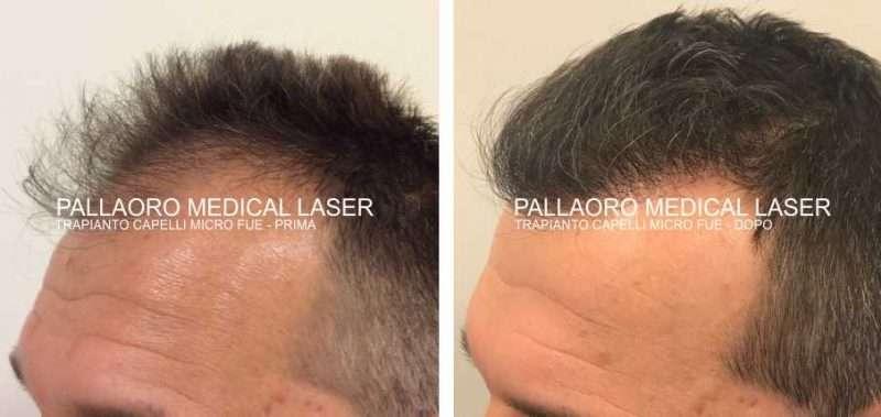 Foto trapianto capelli stempiature e zona frontale