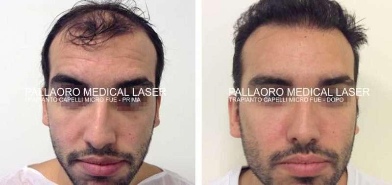 Trapianto capelli foto zona frontale anteriore