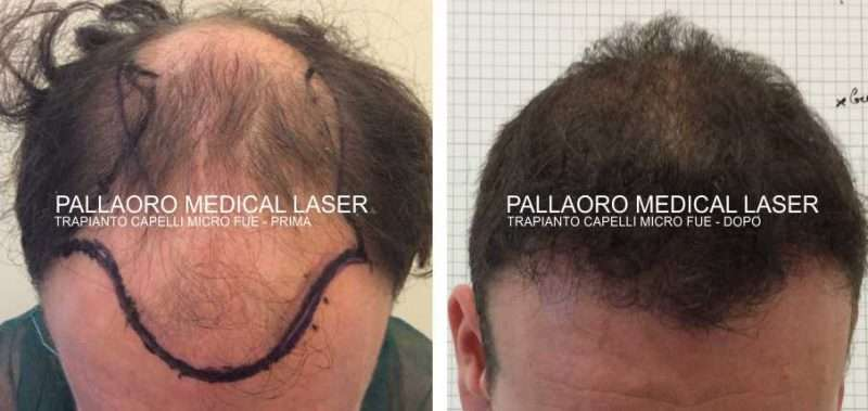 Foto trapianto capelli alopecia androgenetica grado 5