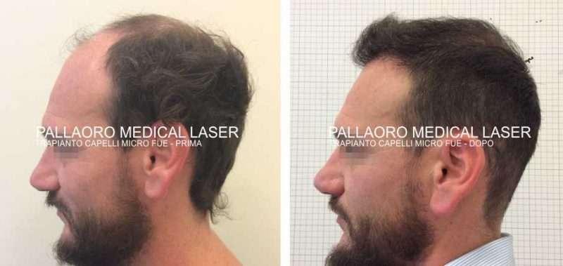 Trapianto capelli foto: Alta densità e risultato naturale