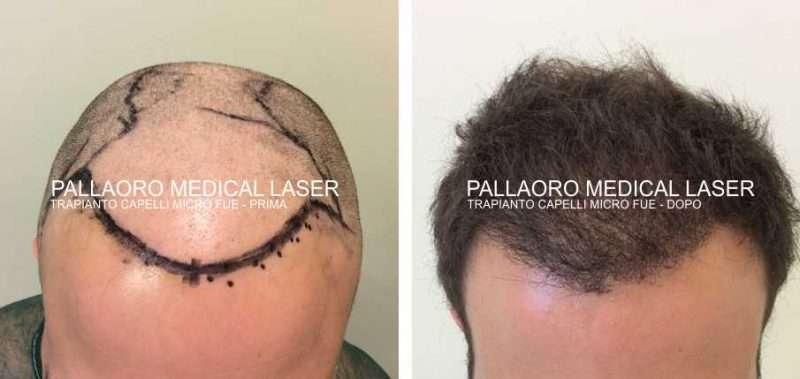 Trapianto capelli foto del ripristino della zona frontale e attaccatura