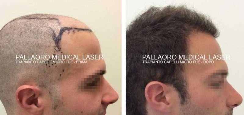 Foto trapianto dei capelli Micro FUE su paziente giovane