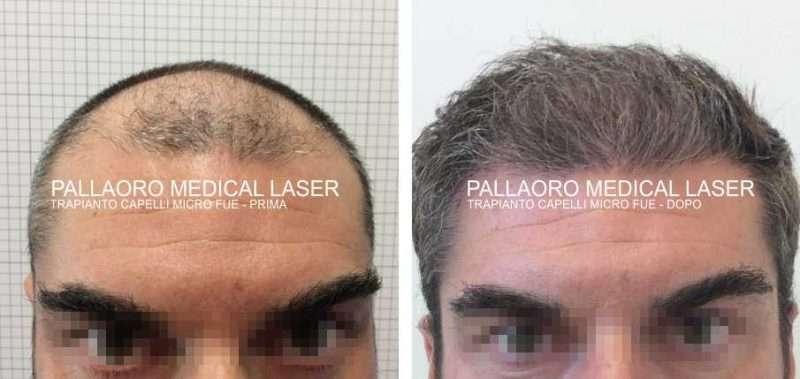 Trapianto capelli foto - Chirurgia estetica capelli prima dopo bdc4952d8fdc