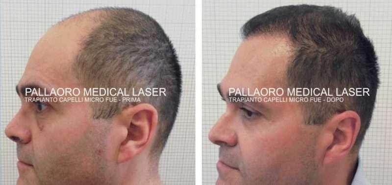 Foto trapianto capelli su paziente grado 5 Norwood