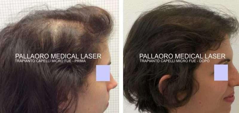 trapianto capelli femminile 1005