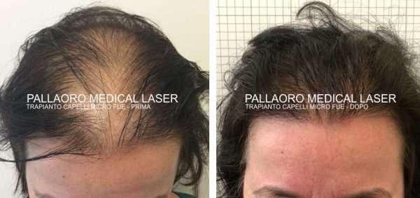 trapianto capelli in caso di calvizie femminile