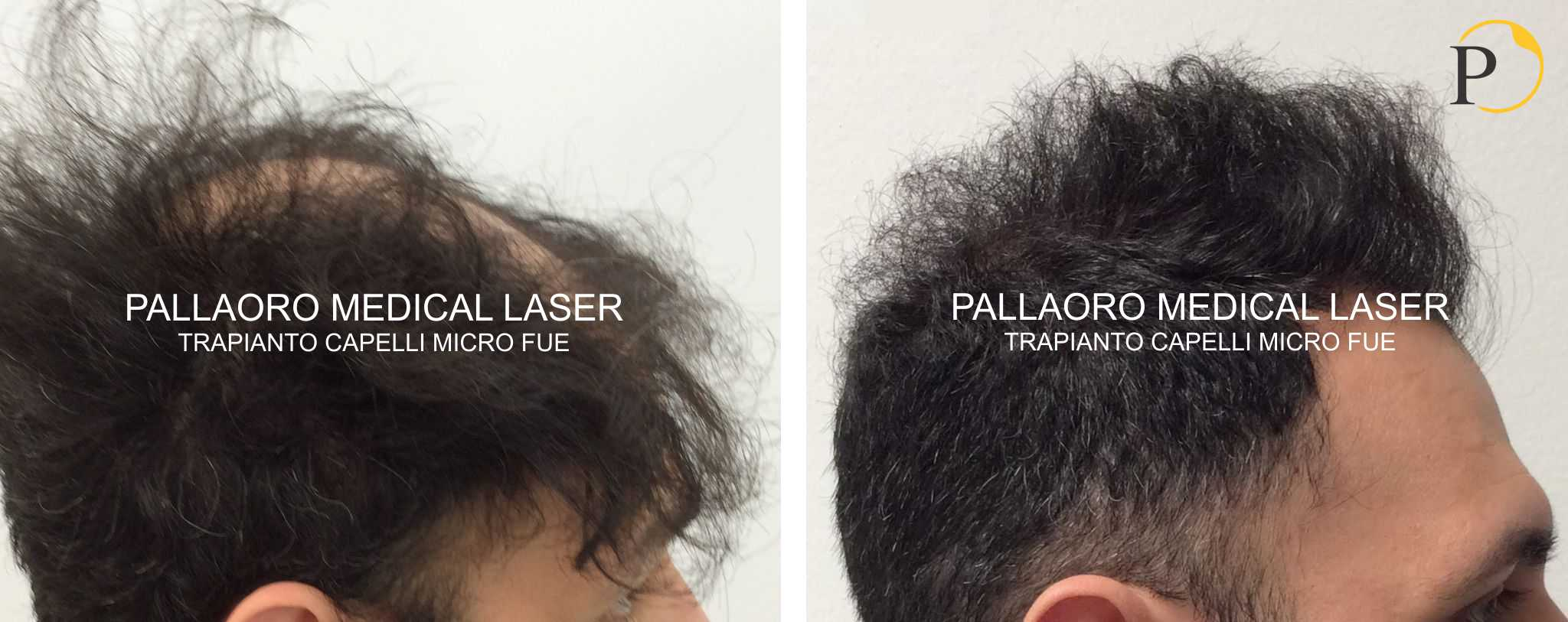 trapianto capelli 19-0103
