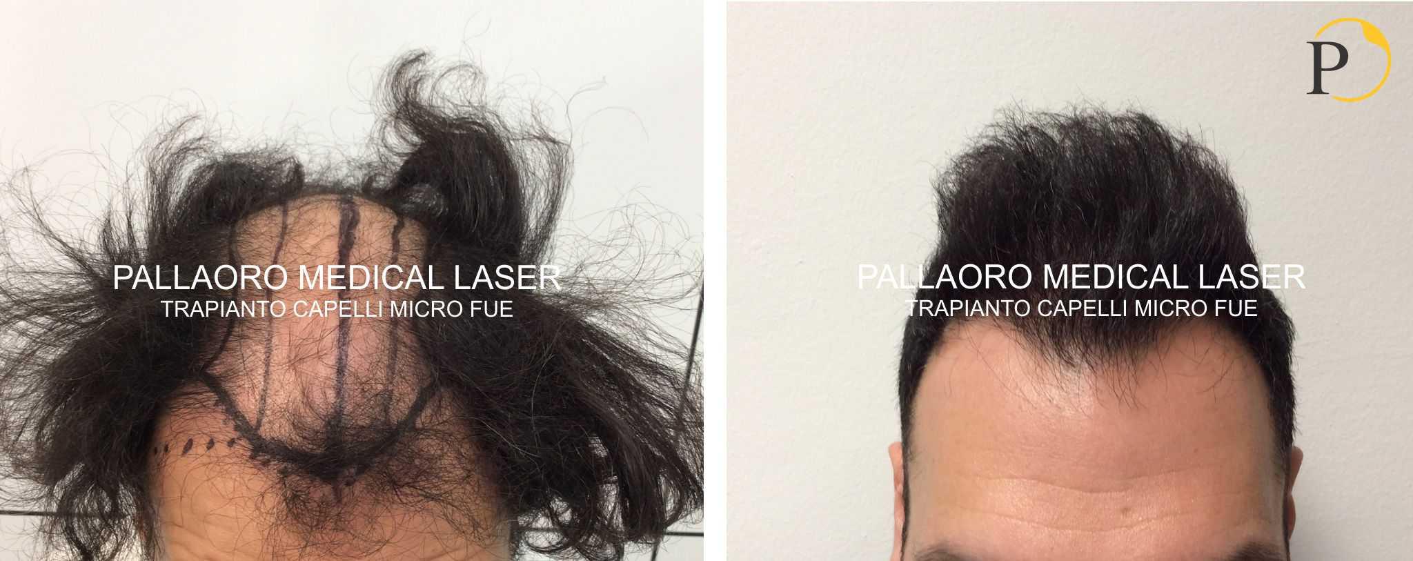 trapianto capelli 19-0104