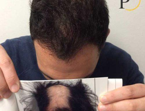 Trapianto capelli: Funziona veramente?