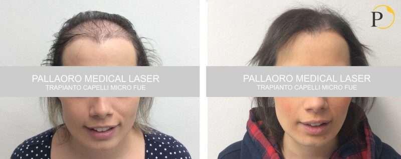 Trapianto capelli donna foto #2 - Chirurgia estetica ...