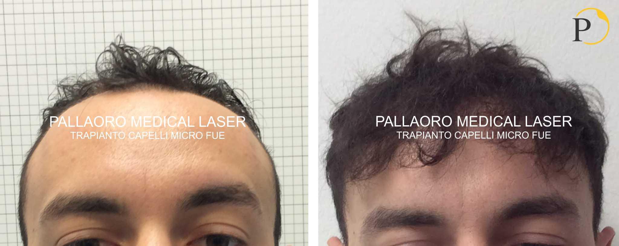 trapianto capelli 19-0602