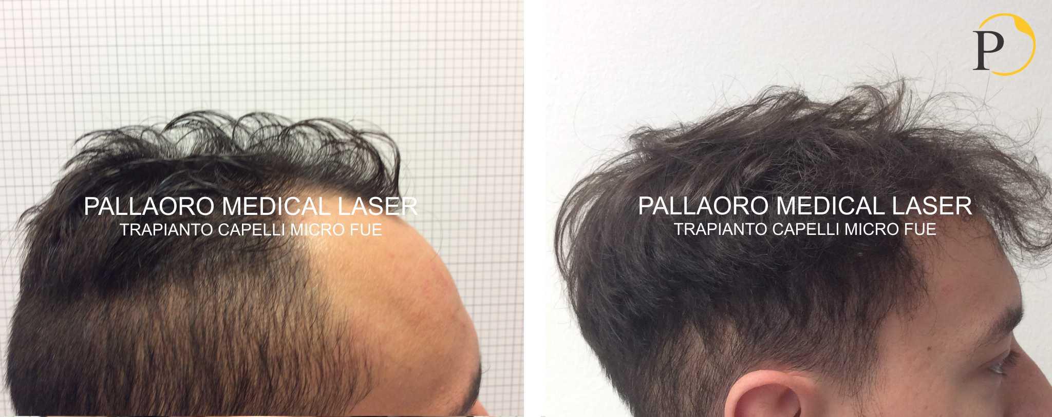 trapianto capelli 19-0603
