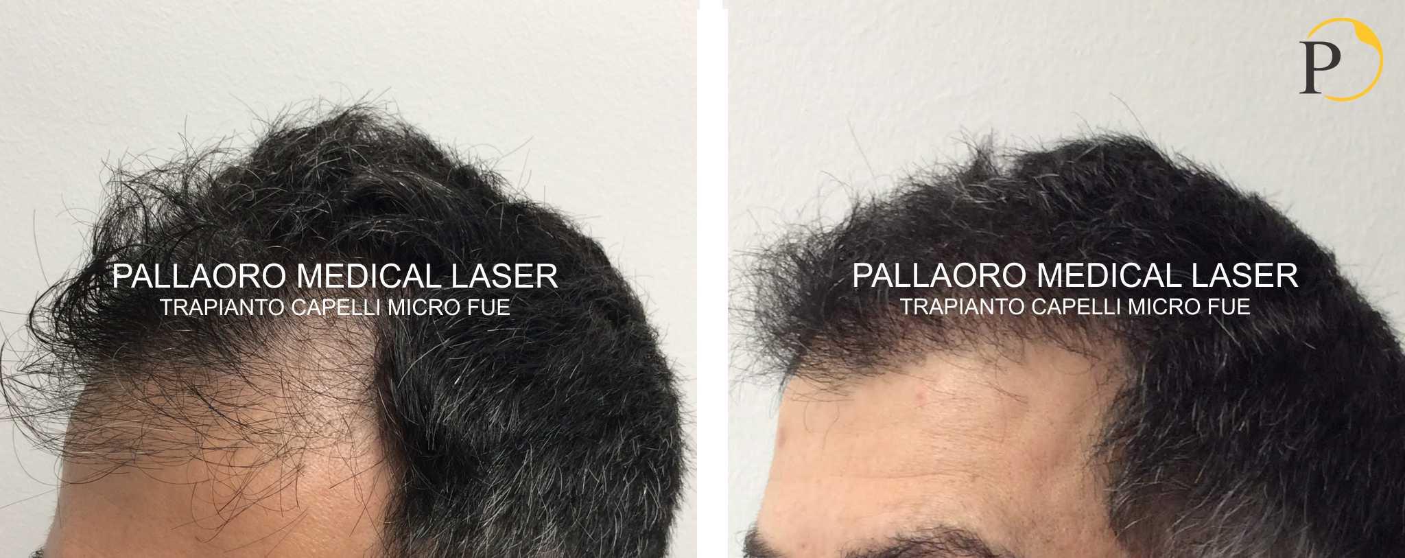 trapianto capelli 19-0703