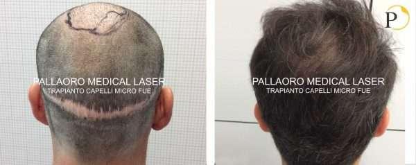 Trapianto capelli foto cicatrice FUT - Correzione esito ...