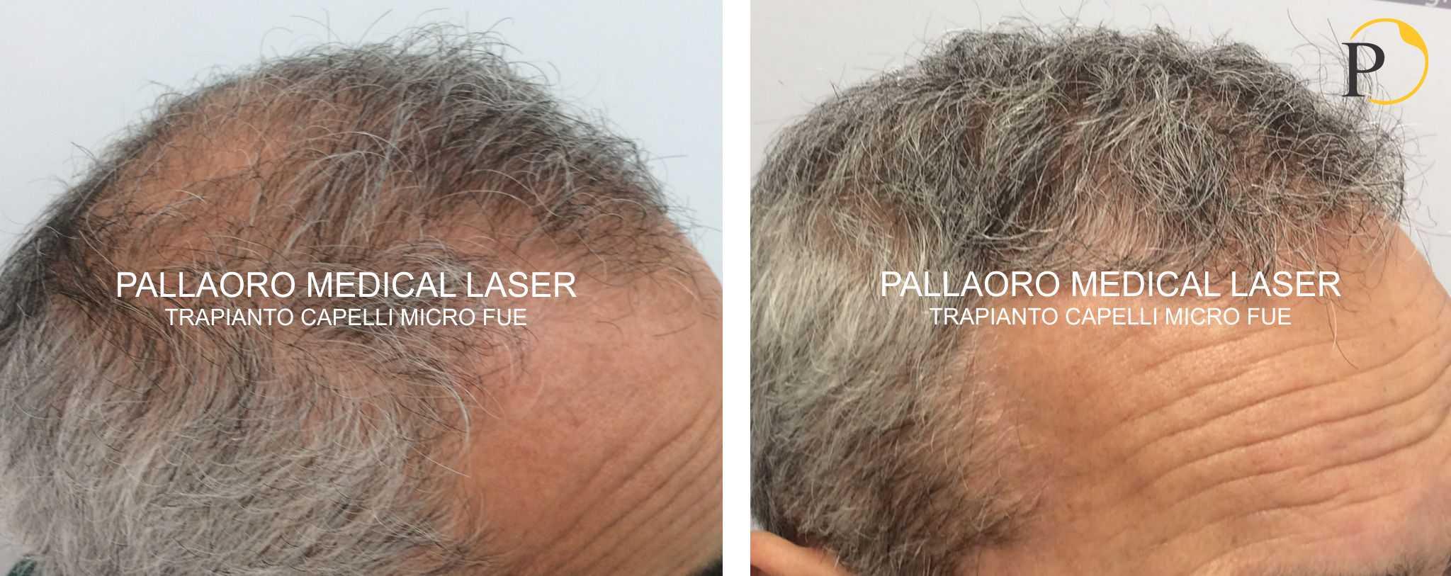 trapianto capelli 19-1003