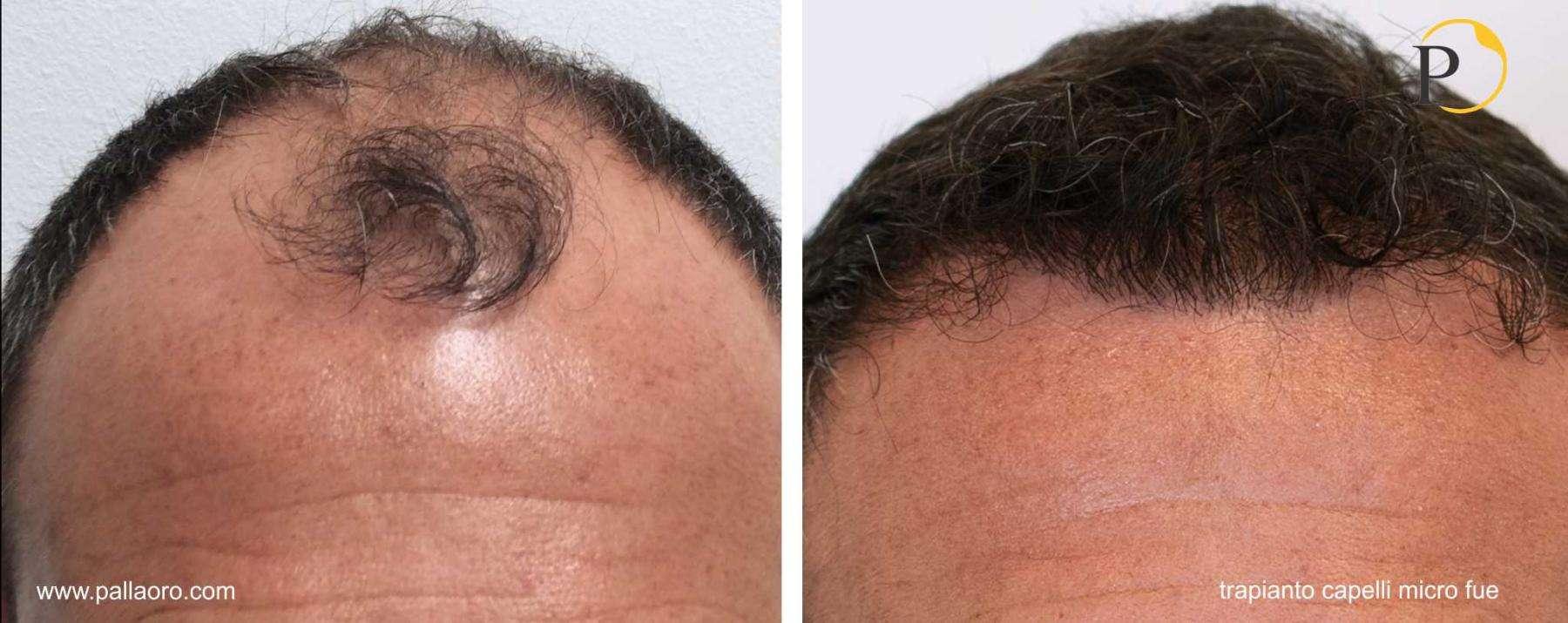 trapianto capelli 20-002-b