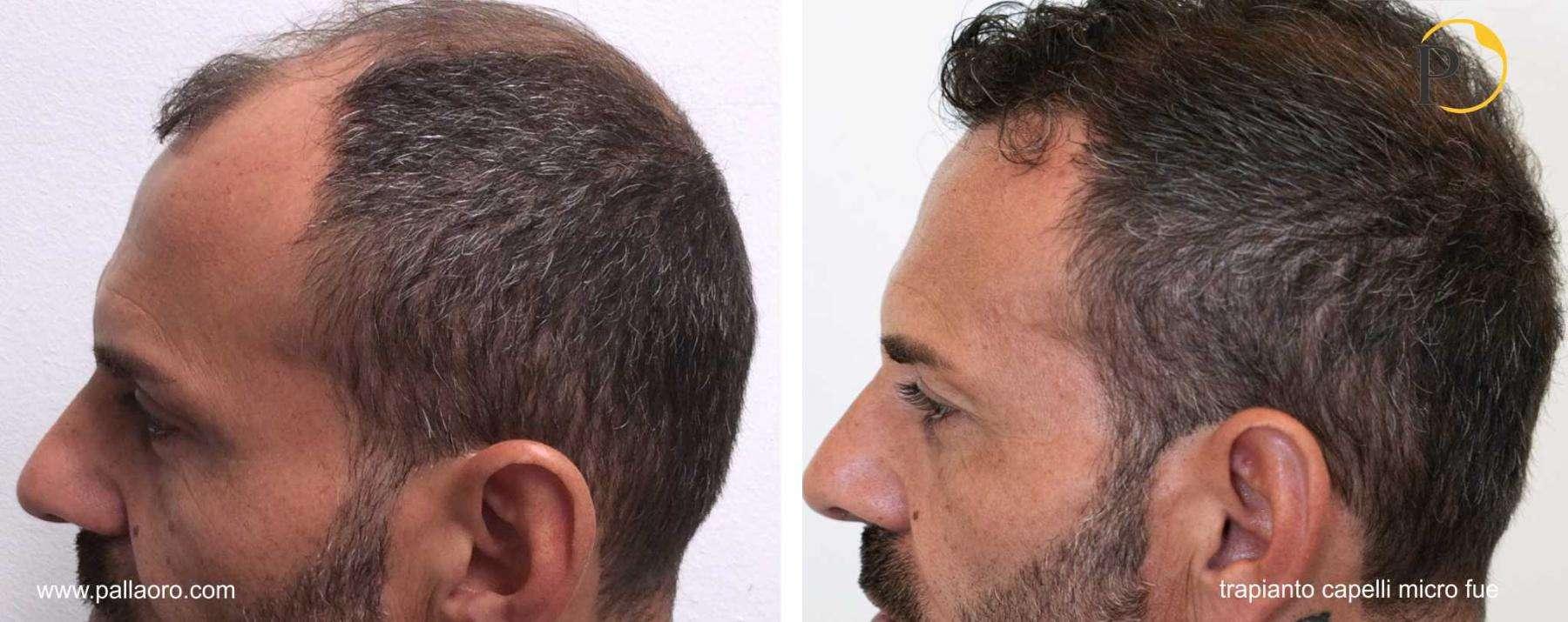 trapianto capelli 20-002-c