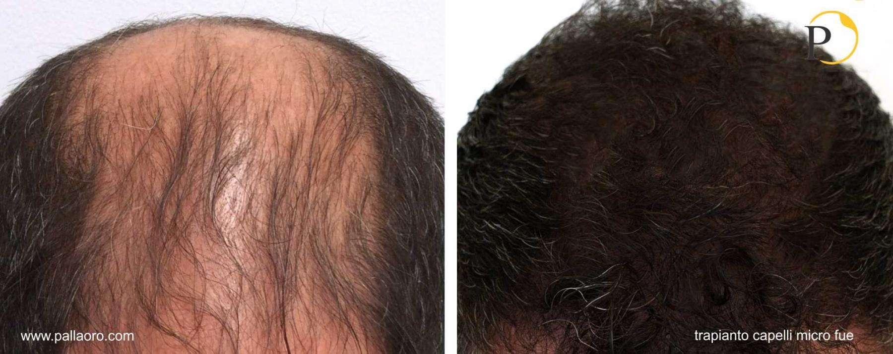 trapianto capelli 20-002-a
