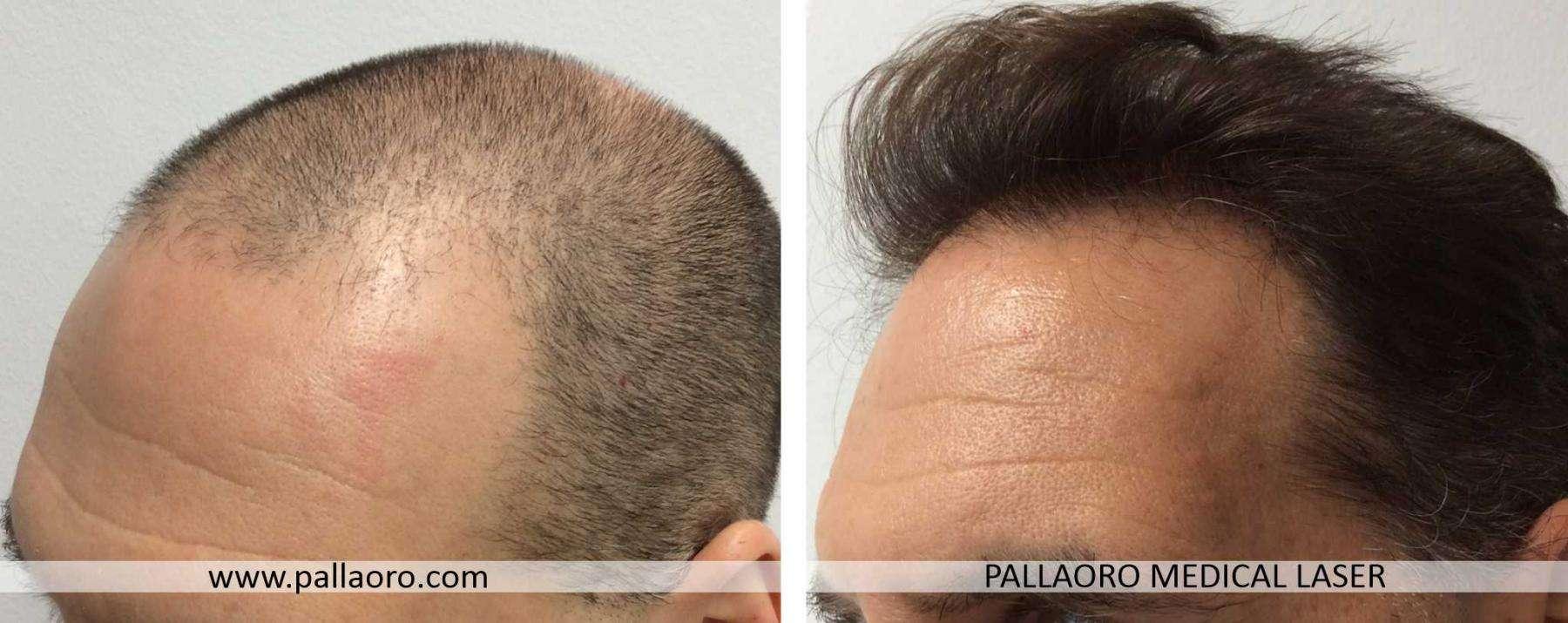 trapianto capelli 2021 01 b