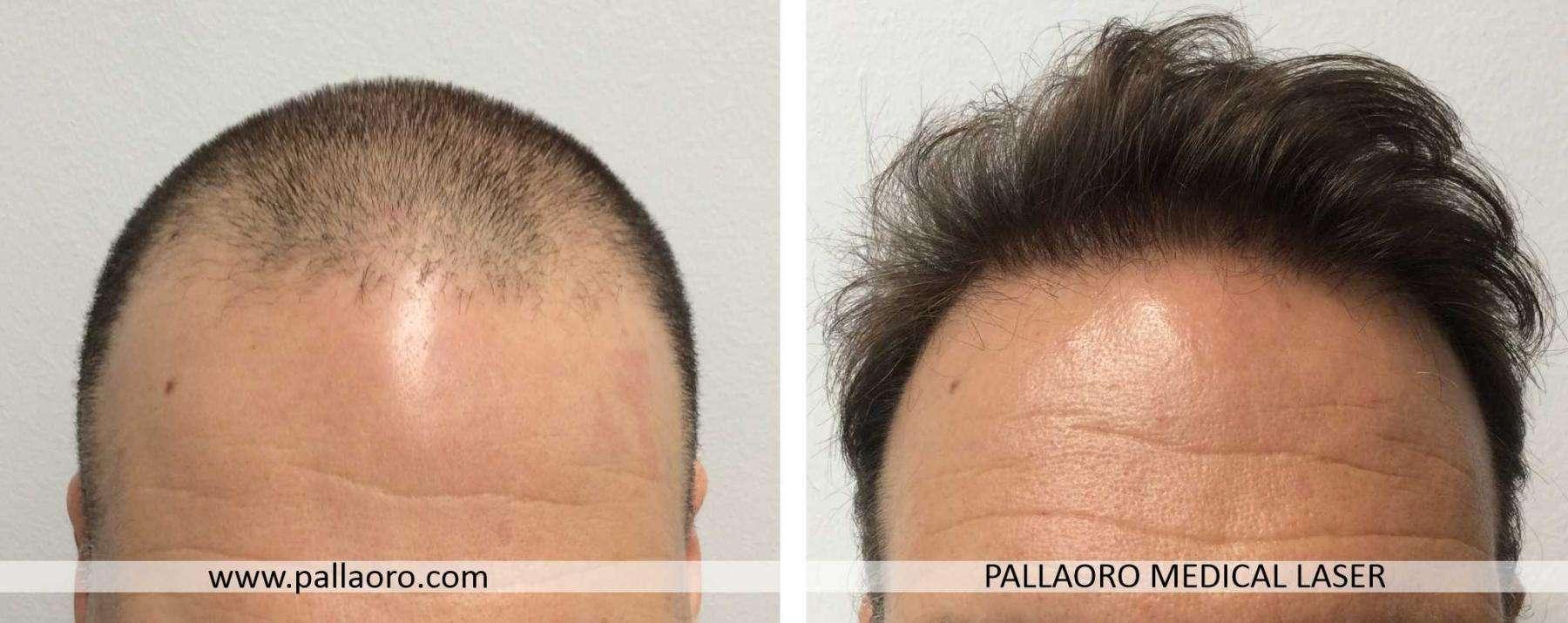trapianto capelli 2021 01 c