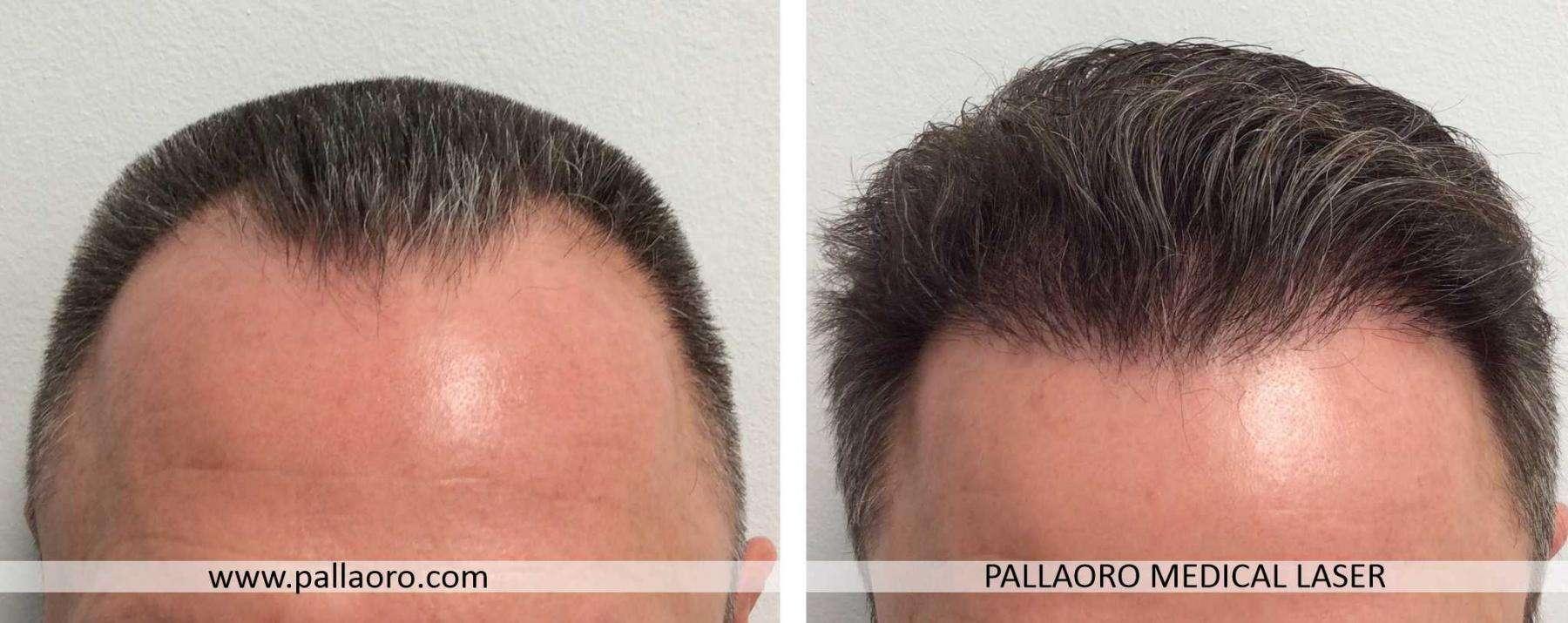 trapianto capelli 2021 02 a