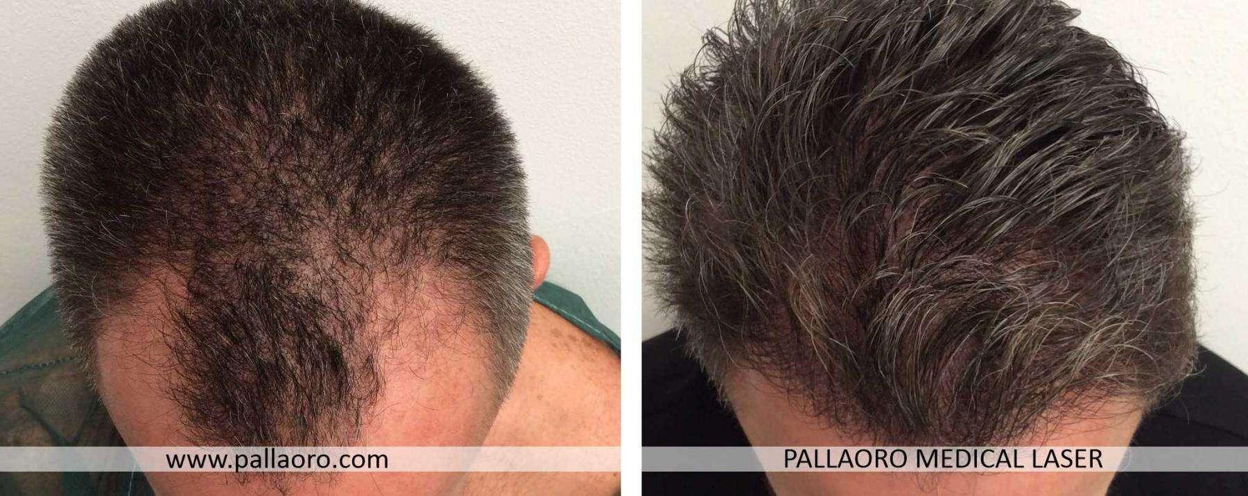 trapianto capelli 2021 02 b
