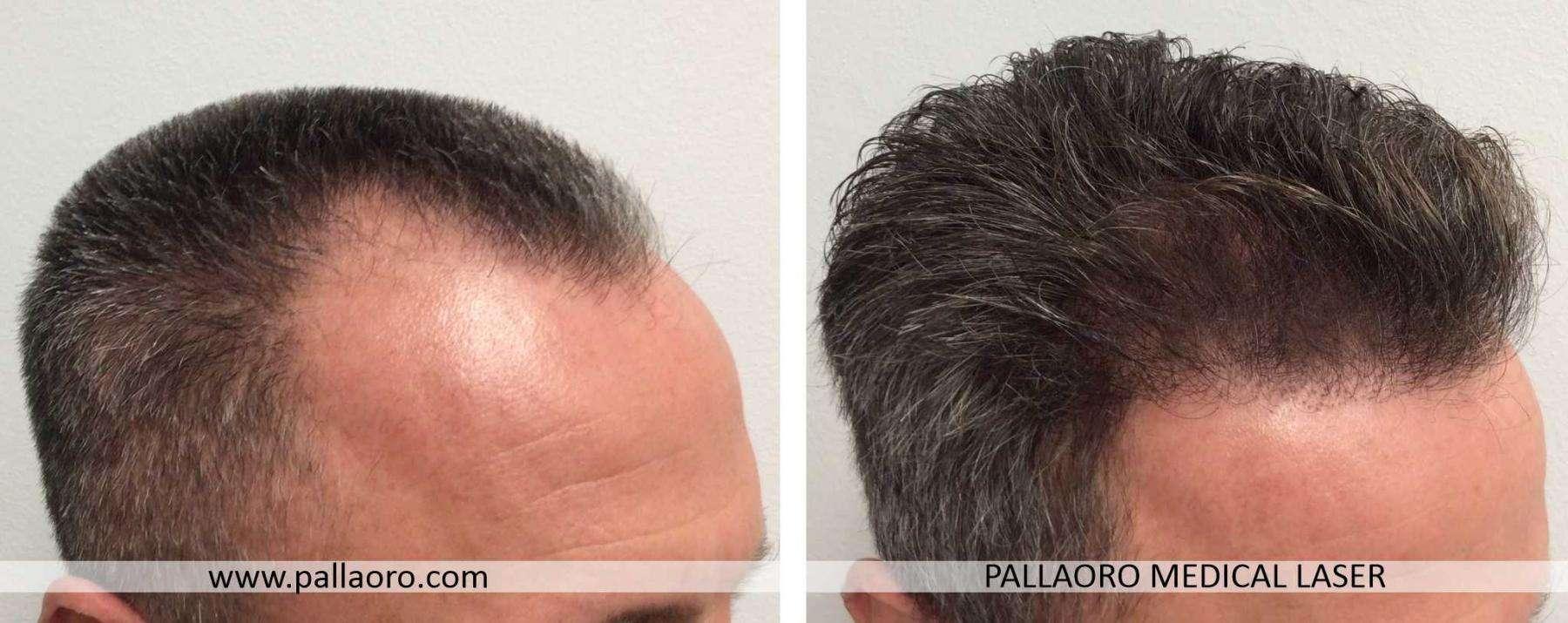trapianto capelli 2021 02 c