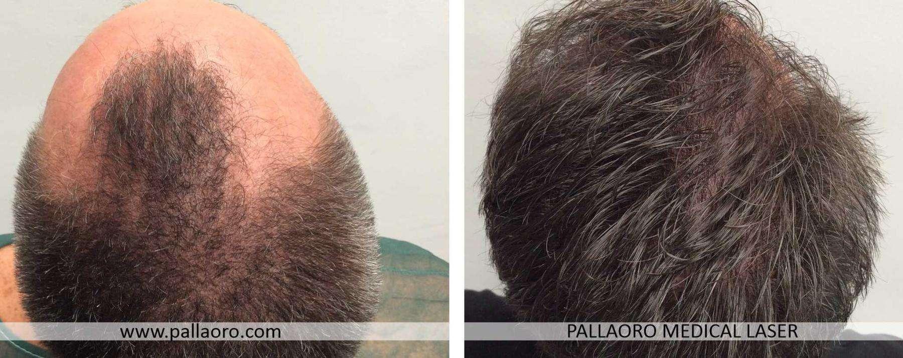 trapianto capelli 2021 02 d