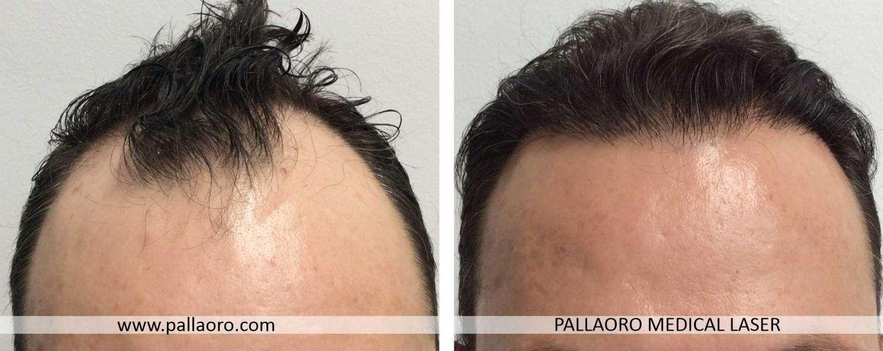 trapianto capelli 2021 03 a