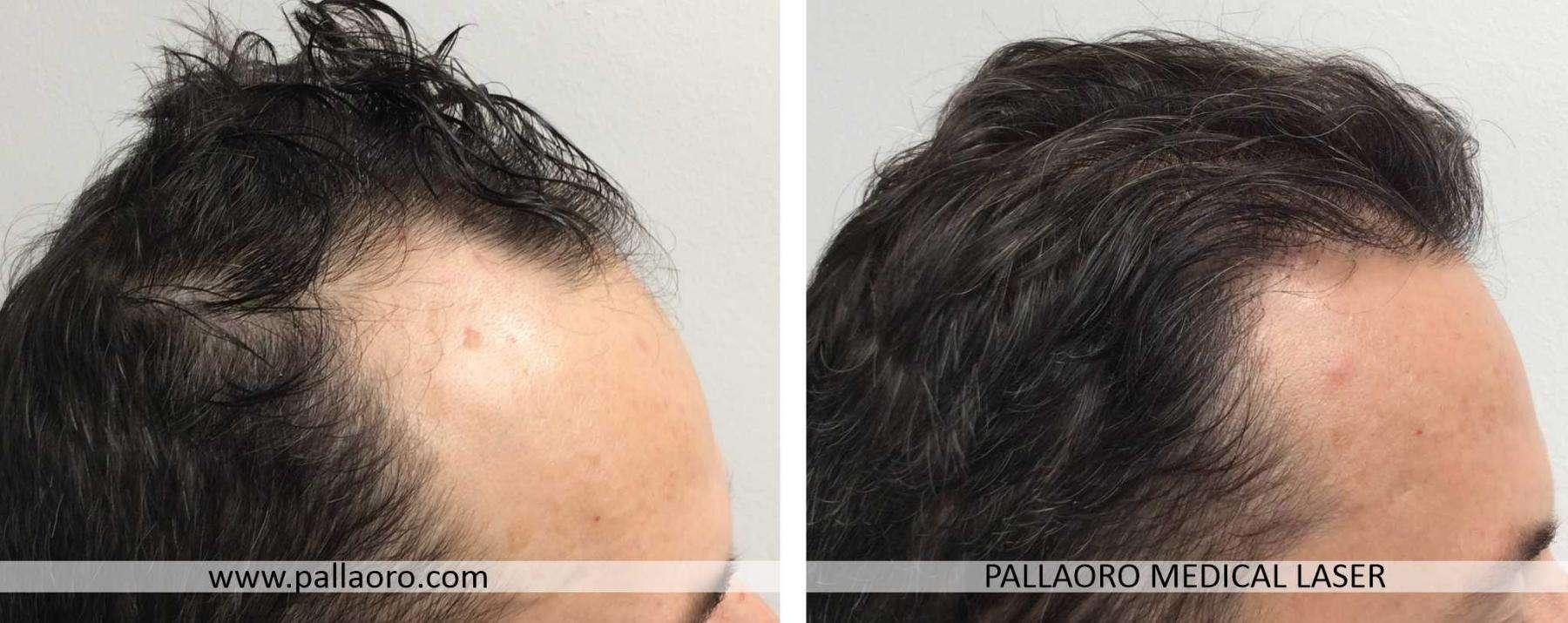 trapianto capelli 2021 03 b