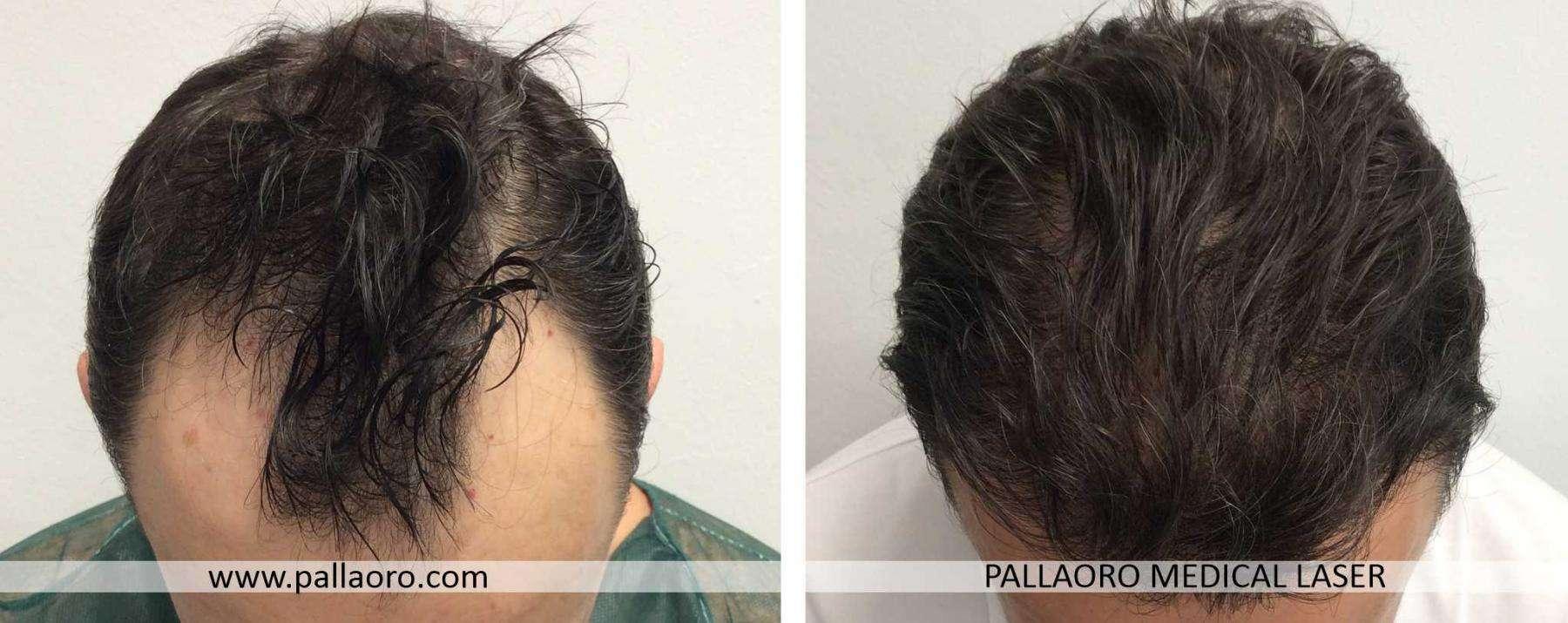 trapianto capelli 2021 03 c