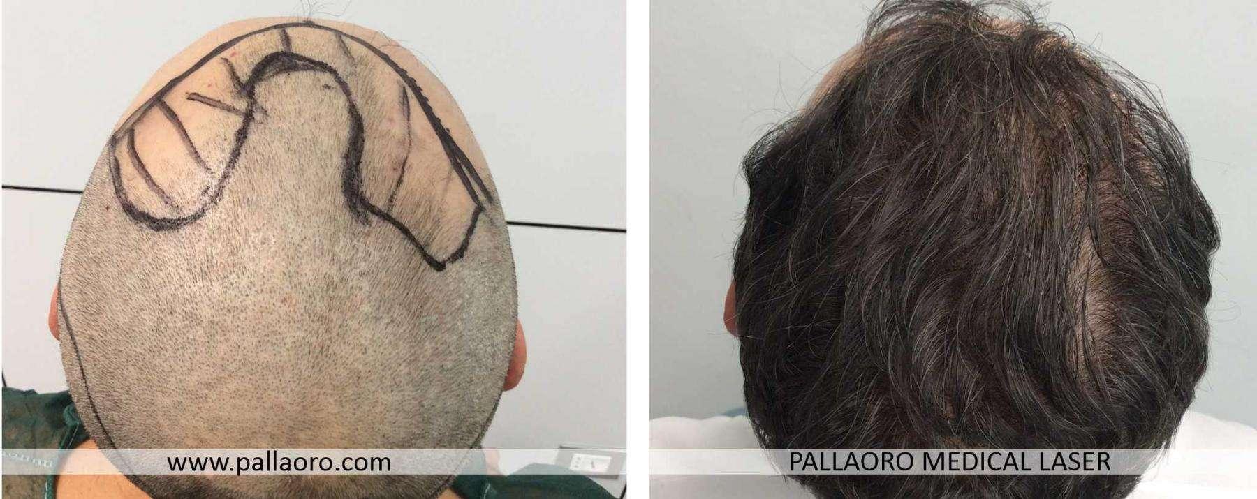 trapianto capelli 2021 03 d