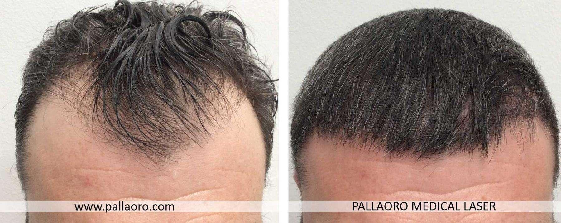 trapianto capelli 2021 04 a