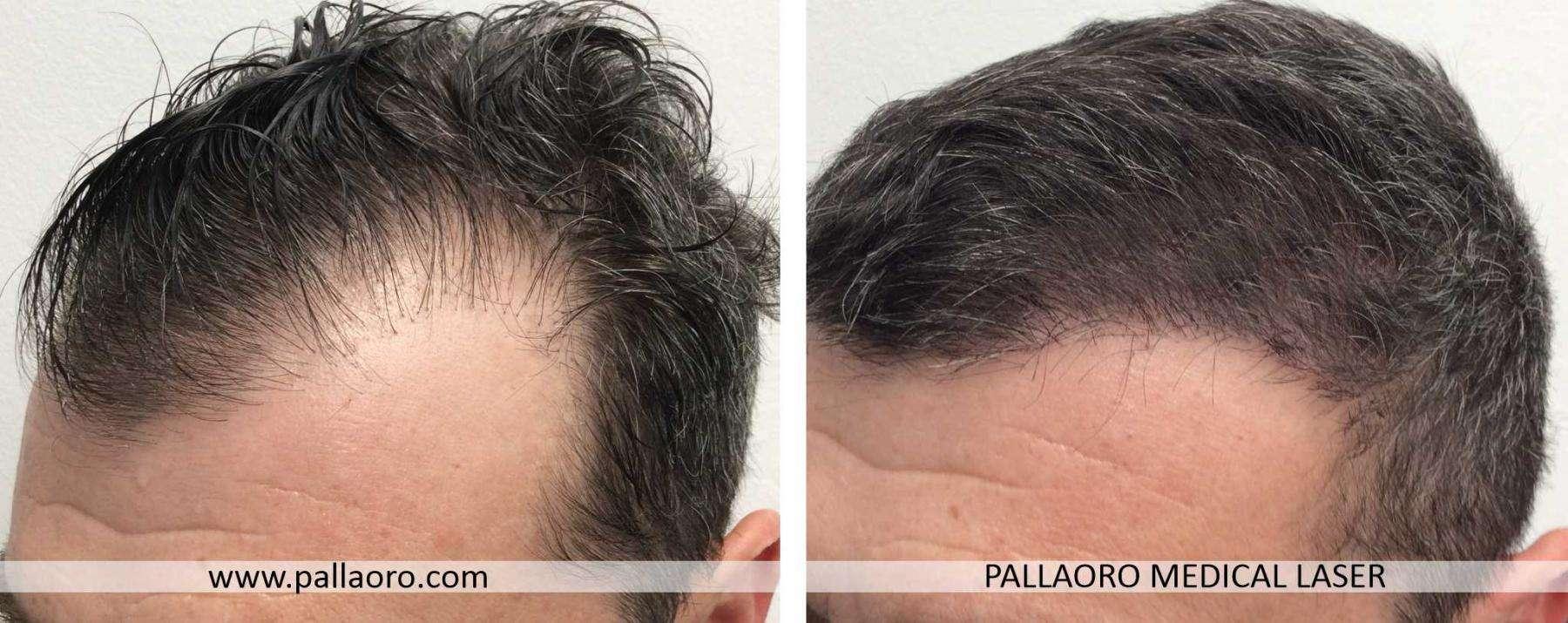 trapianto capelli 2021 04 b