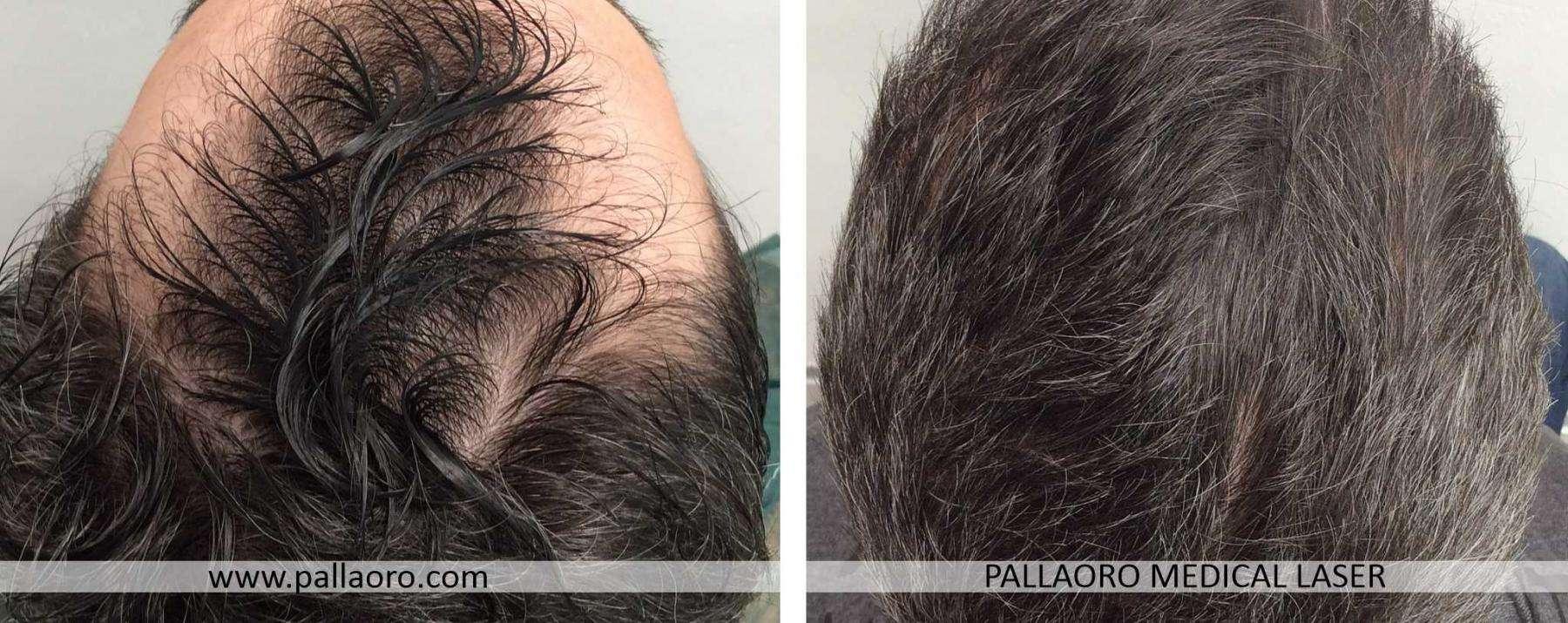 trapianto capelli 2021 04 c