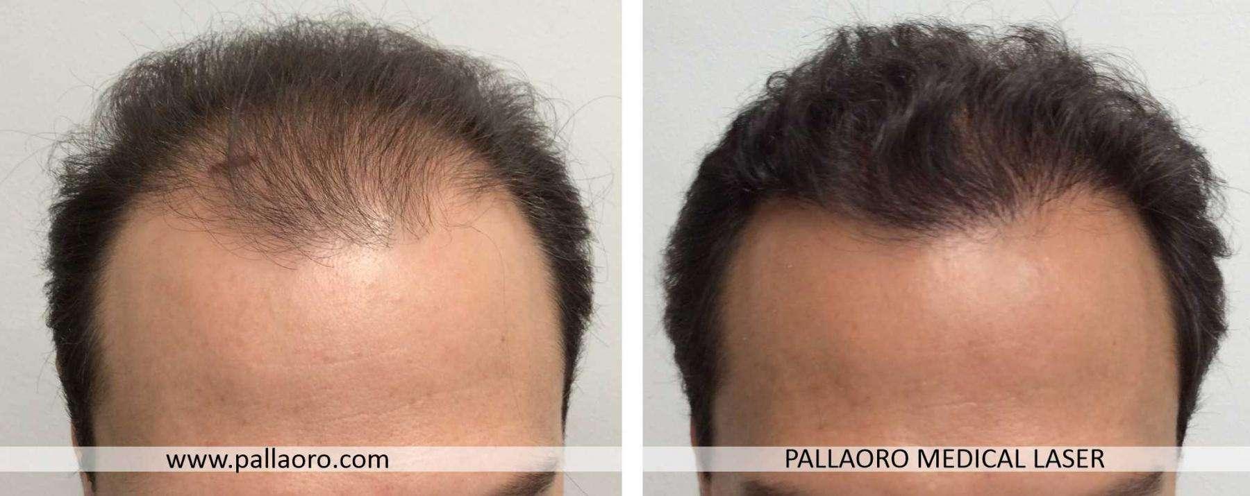 trapianto capelli 2021 05 a