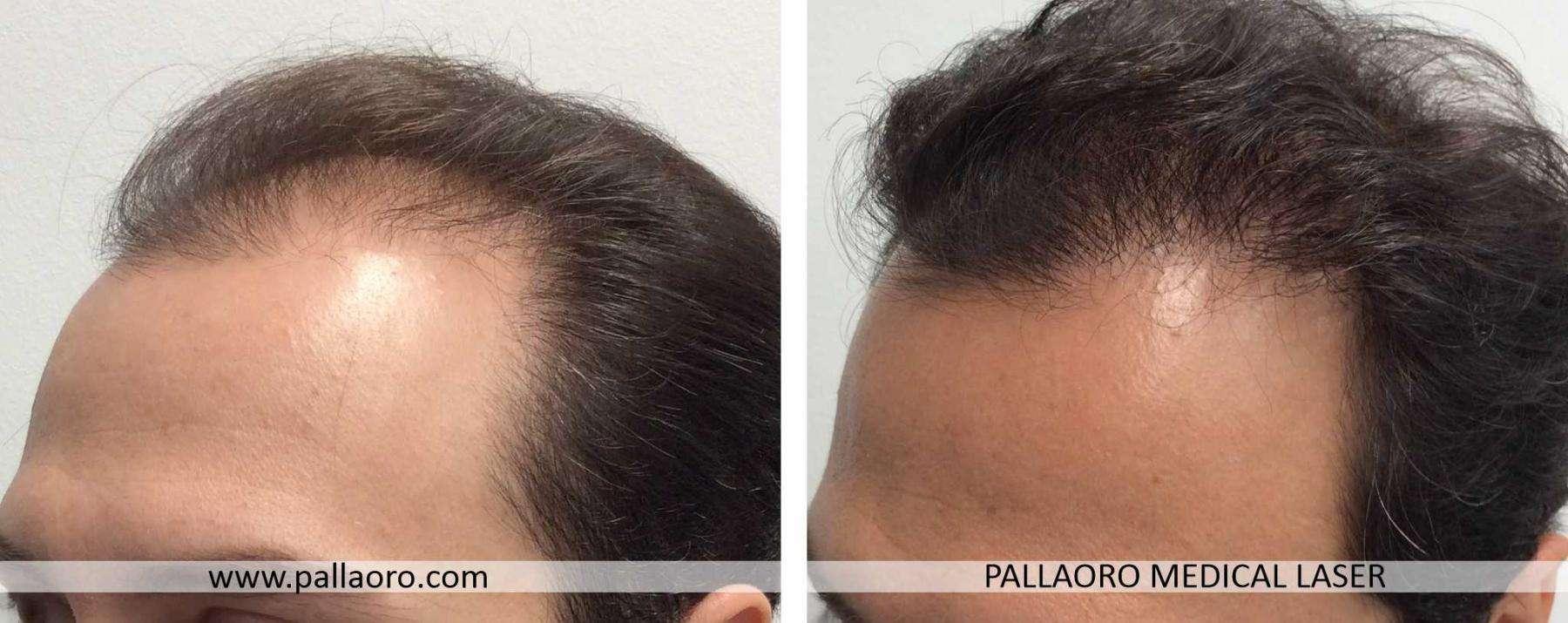 trapianto capelli 2021 05 b