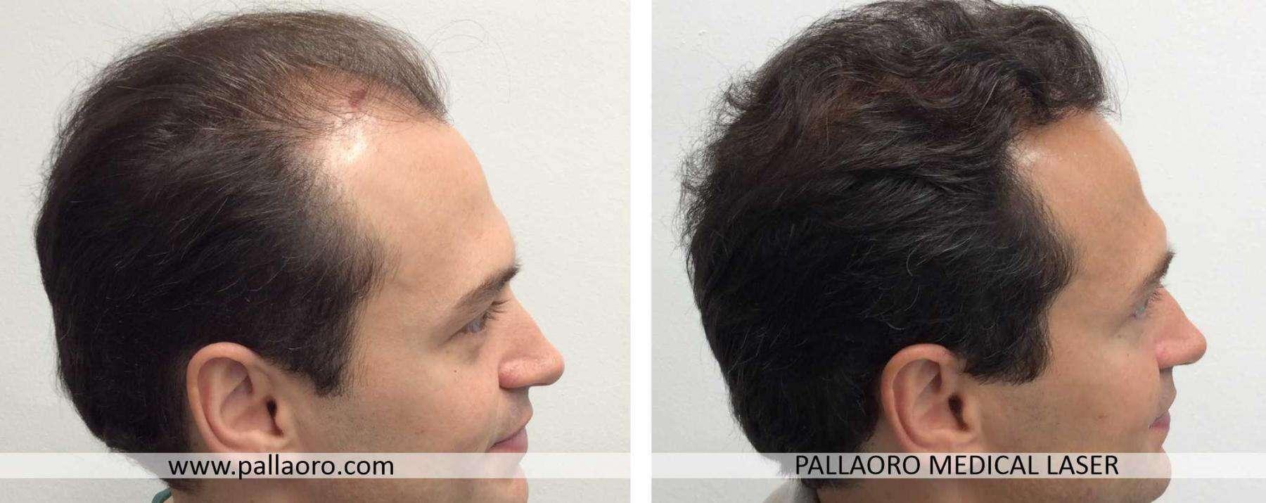 trapianto capelli 2021 05 c