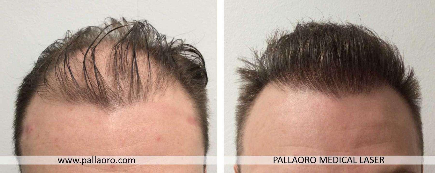 trapianto capelli 2021 06 a