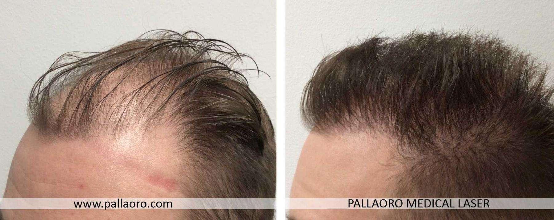trapianto capelli 2021 06 b