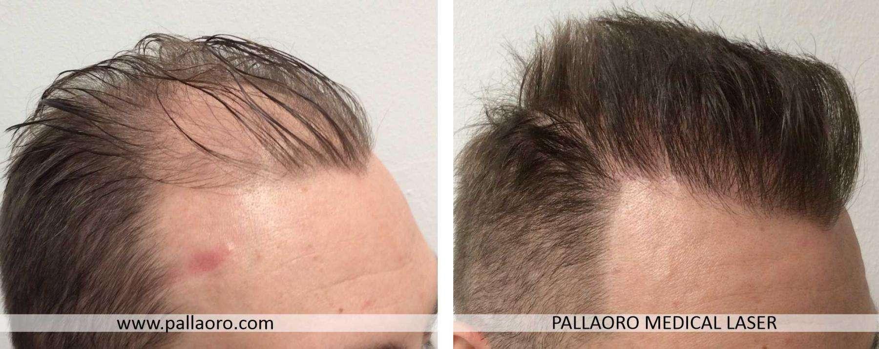 trapianto capelli 2021 06 c