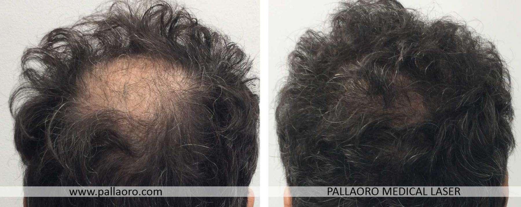 trapianto capelli 2021 07 a