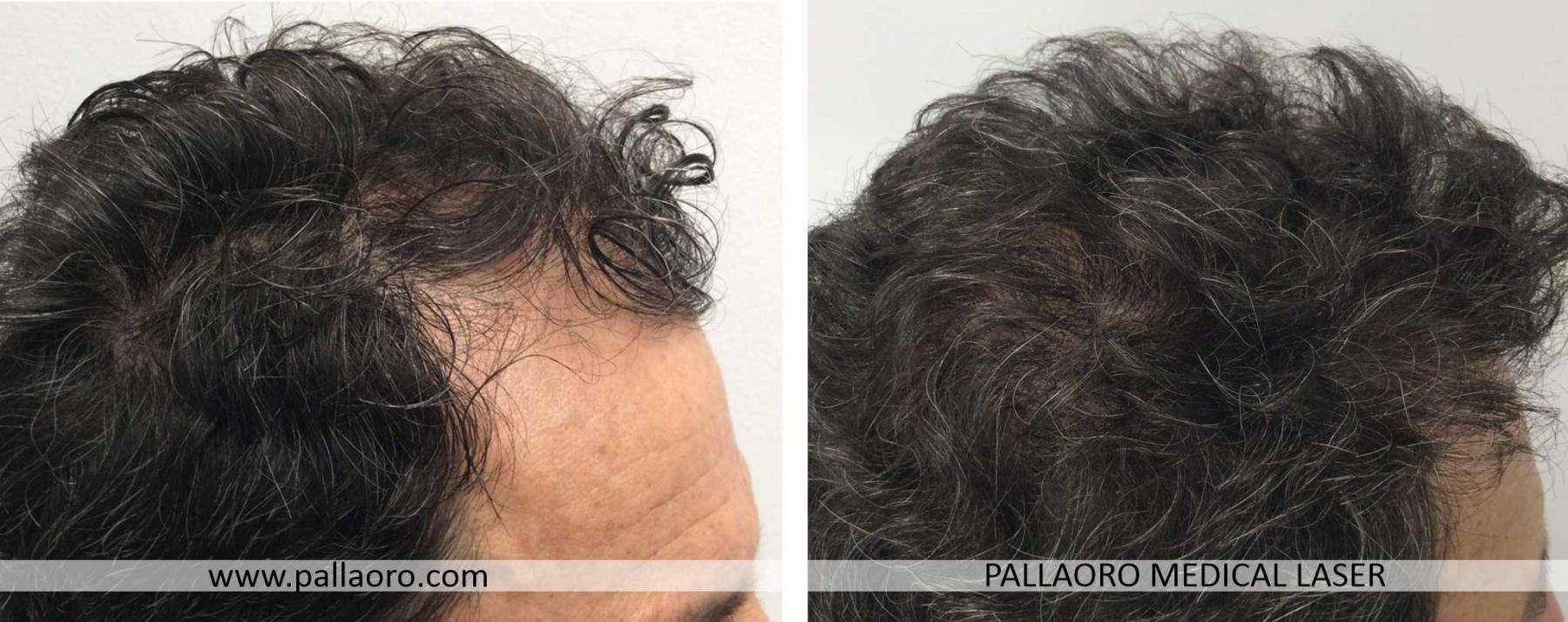 trapianto capelli 2021 07 b