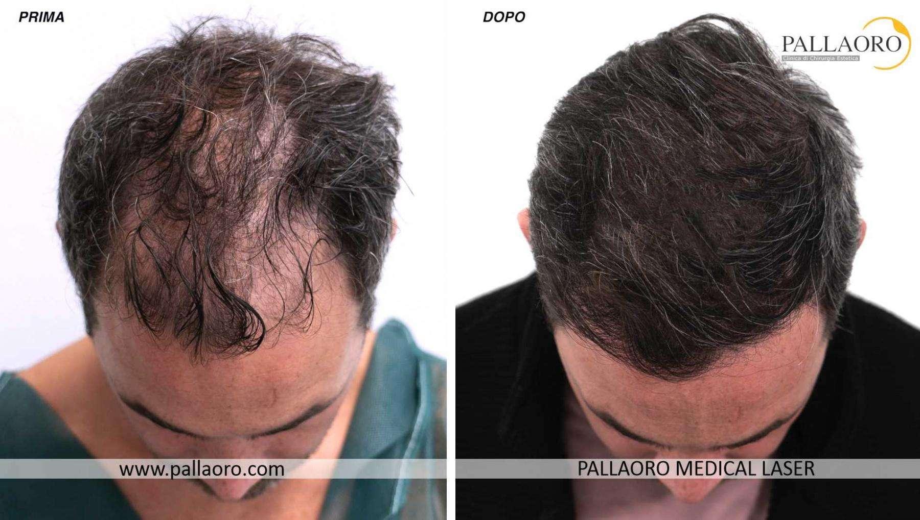 trapianto capelli 2021 08 a davide